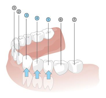 Zähne wann kommen welche